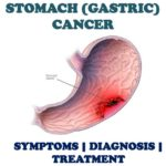 STOMACH CANCER: See why you should not joke with ULCER.
