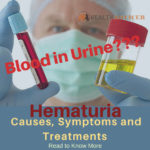 "HEALTH GIST: ""BLOODY"" URINE WITHOUT PAIN"