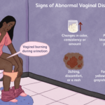 This is why your vagina discharge smells like fish